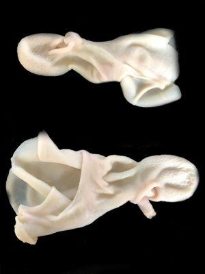 stomaxi-amnoerifiou-elliniko